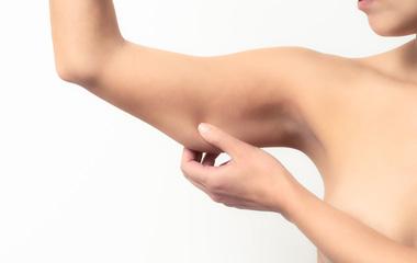 Tratamento de flacidez corporal